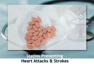 statins-prevent-heart-attack